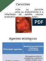 cervicite.pptx-1