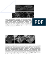 CT scan Testis.docx
