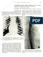 1.9 a Case of Turner's Syndrome With Coarctation of the Aorta and a Pulmonary Arterio-Venous Aneurysm. Dr. Harris Jackson