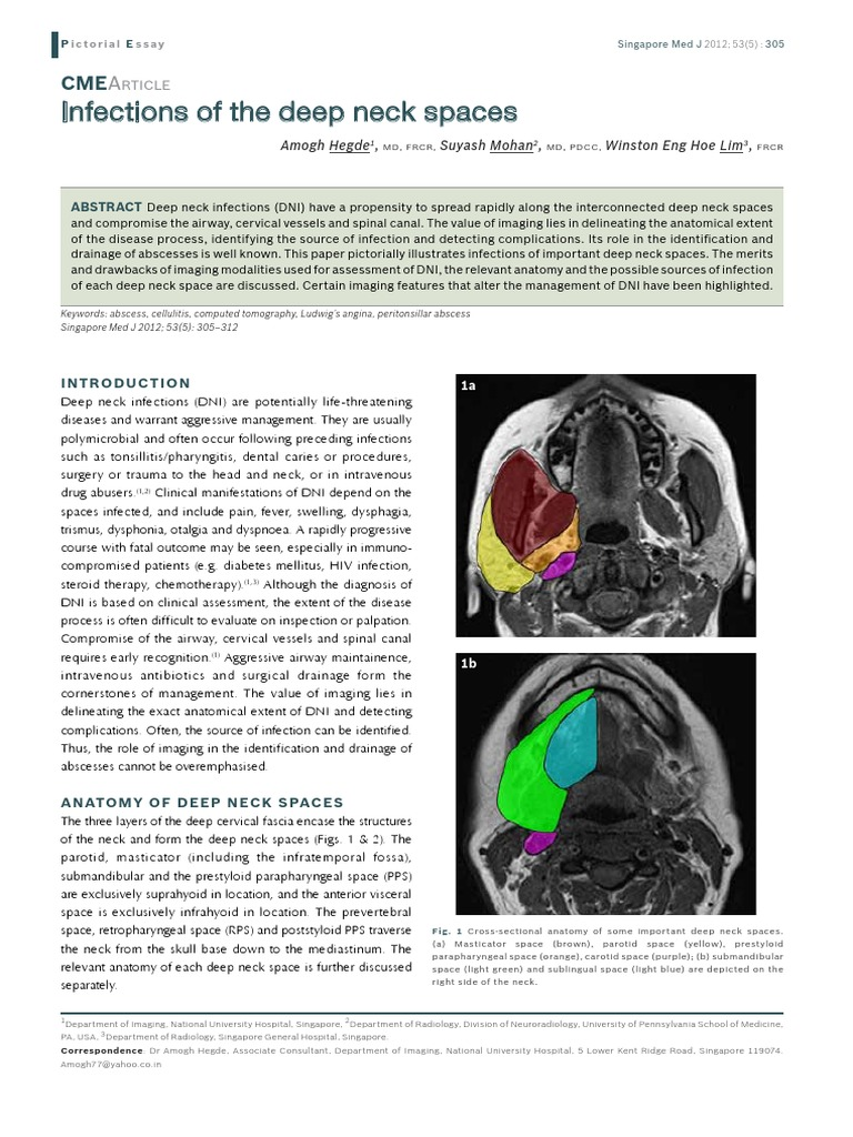 smj-53-305   Common Carotid Artery   Human Head And Neck