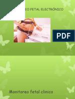 monitoreofetalelectrnico-121102201343-phpapp01