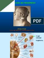 Neuralgia Trigemino 2013