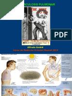 Tuberculosis Pulmonar 2013