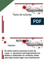 tipos-de-suturas-111201171937-phpapp02.pdf