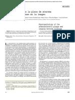 ateroeclerosis.pdf