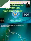 Curso ECG_5 Bloqueos y Arritmias Ventriculares