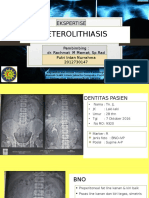 Ekspertesi Ureterolithiasis Fix
