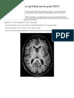 L'IRM Cérébrale _ Ce Qu'Il Faut Savoir Pour l'ECN