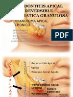 Endodonciaperiodontitis Apical Irreversible Asintomatica Granulosa