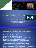 ecografia3ertrimestre-110501173635-phpapp02
