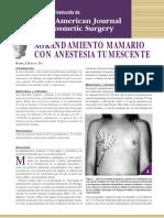 Mamoplastia de Aumento Con Anestesia Tumescente
