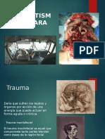 Traumatismo maxilofacial