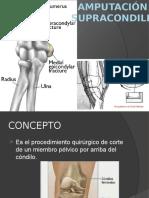 Diapositiva de La Amputacion Supracondilia