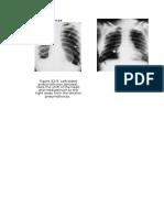 radiologi ujian