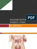 kanker ginjal.pptx