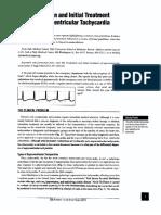 Evaluation and Treatment of Supraventricular Tachycardia