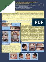 Cartel Tratamiento Ortopédico Clase III esquelética
