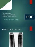 Tipos de Fractura