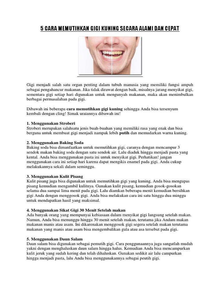 Artikel 5 Cara Memutihkan Gigi Secara Alami