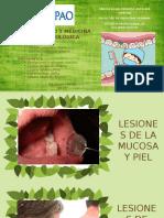 Lesiones en La Mucosa y Piel