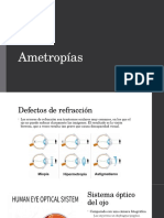 Ametropías