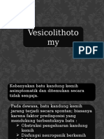 ppt vesicolitotomy