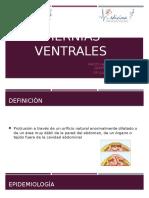 Hernias Ventrales