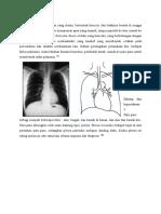 Referat Pneumonia (Anatom0 Dan Definisi)