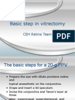 Basic Vitrectomy