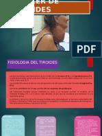 Cancer de Tiroides[1]