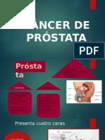 Cancer de Próstata [Reparado]