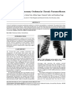 Re-expansion Pulmonary Oedema in Chronic Pneumothorax
