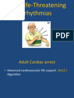 Arrhythmias - Copy - Copy