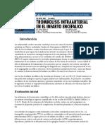 tromnbilisis