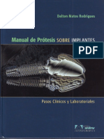 329436989-Manual-de-Protesis-sobre-Implantes-Matos-pdf.pdf