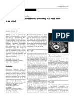 Pediatric Surgery International Volume 15 Issue 2 1999 [Doi 10.1007%2Fs003830050533] D. Govender; G. P. Hadley; R. Donnellan -- Granuloma Inguinale (Donovanosis) Presenting as a Neck Mass in an Infant