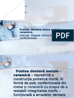 Puntile Dentare Mixte Metalo – Ceramice.