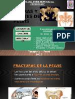 1. 2 Fracturas y Esguinces de La Pelvis