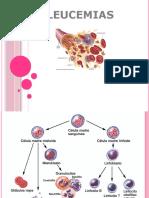 Leucemias Clase