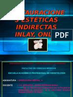 2º Restauraciones Indirectas Tipo Inlayonlay 1