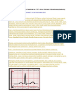 Cara Mudah Membaca Gambaran EKG Atau Rekam Gelombang Jantung