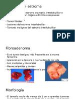 Tumores Del Estroma00