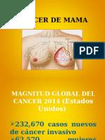 Cancer de Mamas Actual