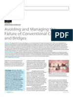 avoiding and managing the failure of conventional crowns and bridges