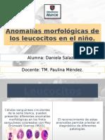 Anomalías Morfológicas de Los Leucocitos en El Niño ppt