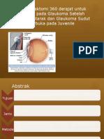 Trabekulektomi 360 Derajat Untuk Refraksi Pada Glaukoma