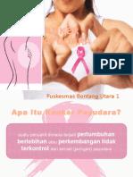 CA Payudara Print