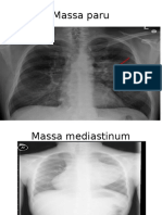 Tugas Radiologi Sanah IPD