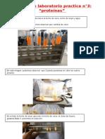 Trabajo de Laboratorio Proteinas