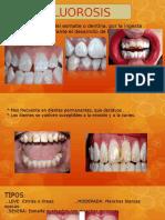 Flurosis - Odontopediatria Miercoles (2)